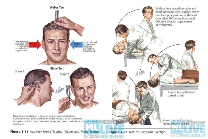 Невринома слухового нерва и слуховые аппараты