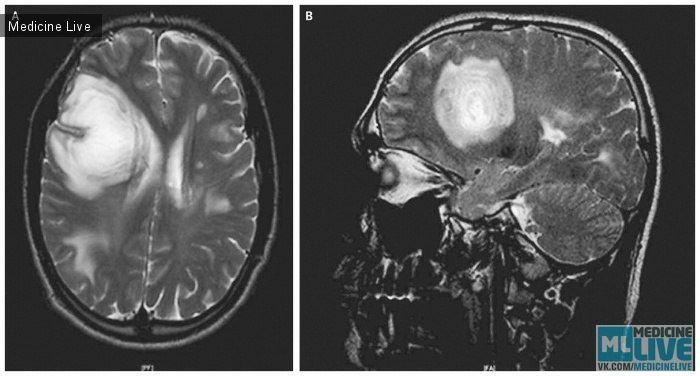 Концентрический склероз Бало