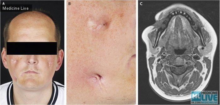 Лицевая фистула, ассоциированная с болезнью Крона