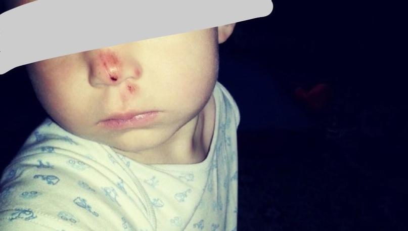 Челнинка обвинила «Жилкомсервис» в том, что малыш получил травму на детской площадке