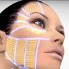 HIFU SMAS лифтинг, ультразвуковая подтяжка лица