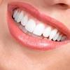 Стоматолог | Виниры | Импланты | Протезирование